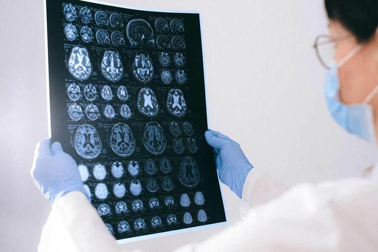 Il libero arbitrio nell'era delle neuroscienze